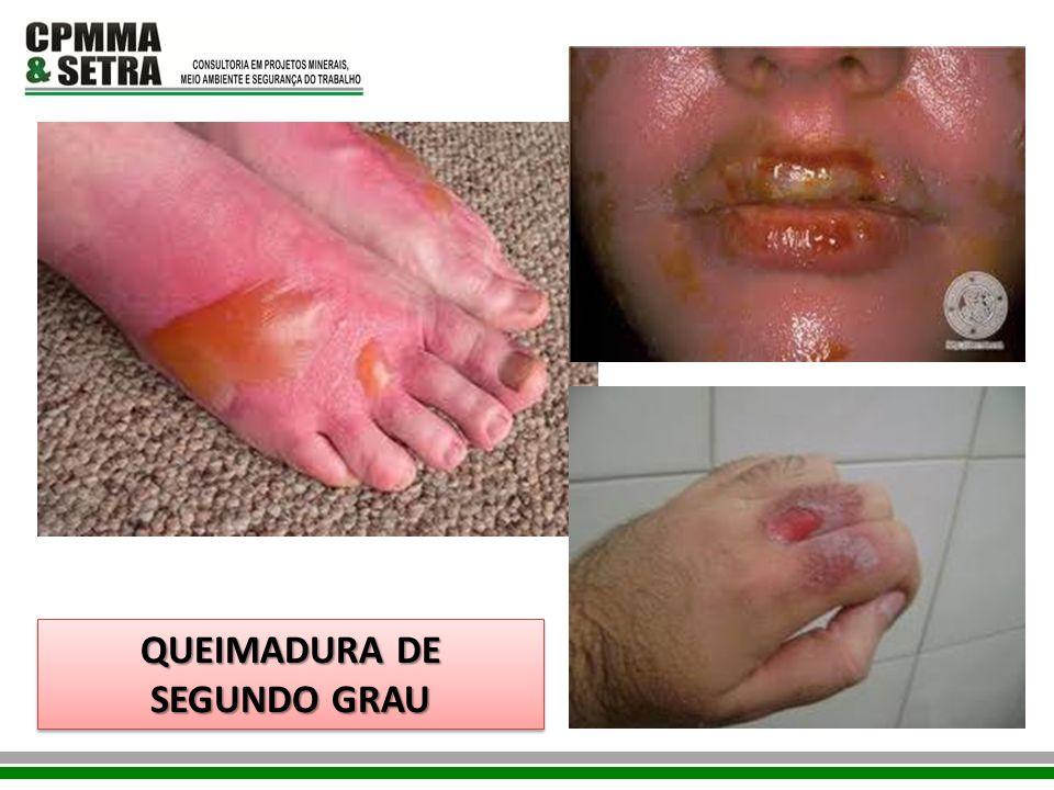 QUEIMADURA DE SEGUNDO GRAU QUEIMADURA DE SEGUNDO GRAU