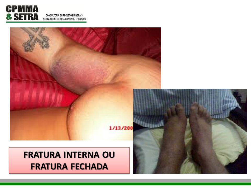 FRATURA INTERNA OU FRATURA FECHADA FRATURA INTERNA OU FRATURA FECHADA