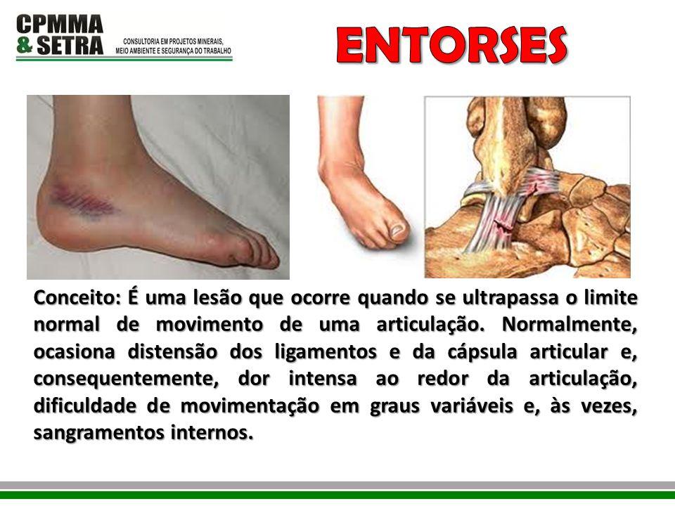 Conceito: É uma lesão que ocorre quando se ultrapassa o limite normal de movimento de uma articulação. Normalmente, ocasiona distensão dos ligamentos
