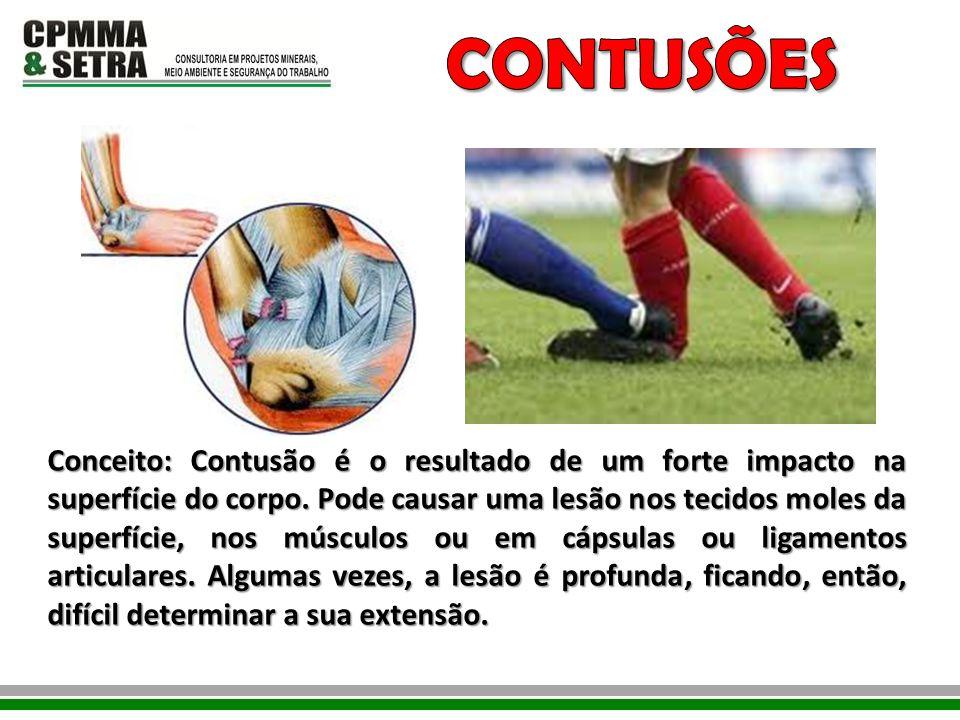 Conceito: Contusão é o resultado de um forte impacto na superfície do corpo. Pode causar uma lesão nos tecidos moles da superfície, nos músculos ou em