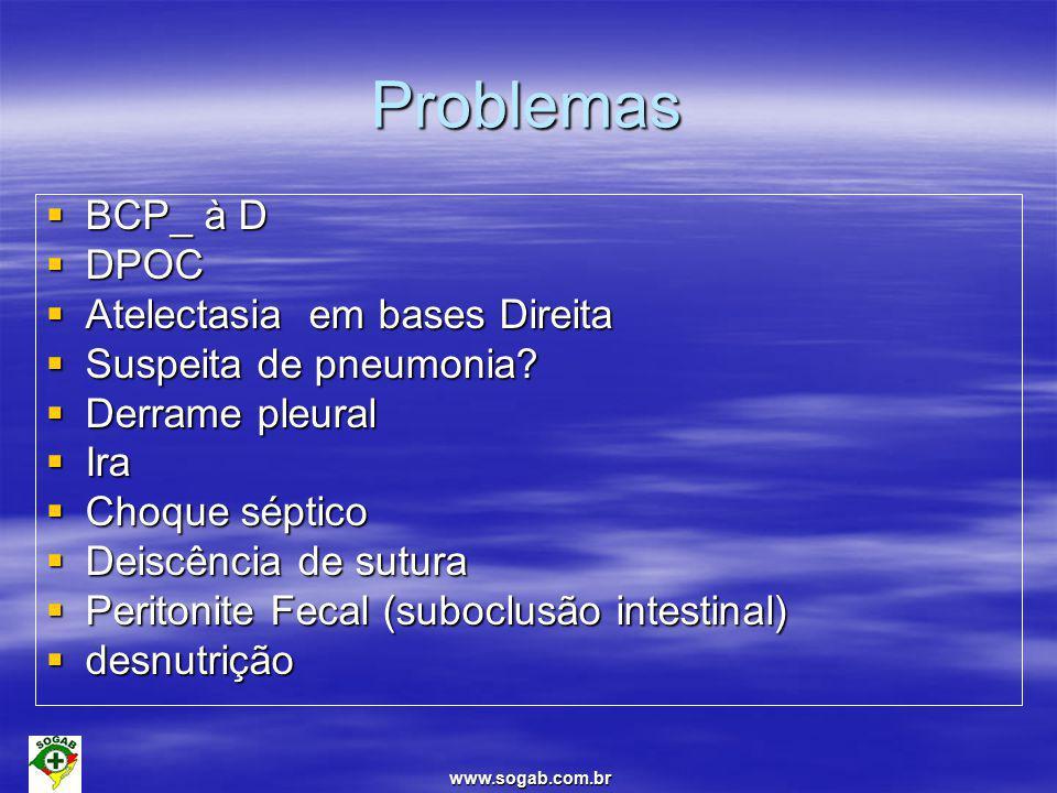 www.sogab.com.br Atelectasia  Condição clínica de incidência bastante frequente e que fisiopatologicamente caracterizada por regiões colapsadas no pulmão que provocam déficit importante de ar.
