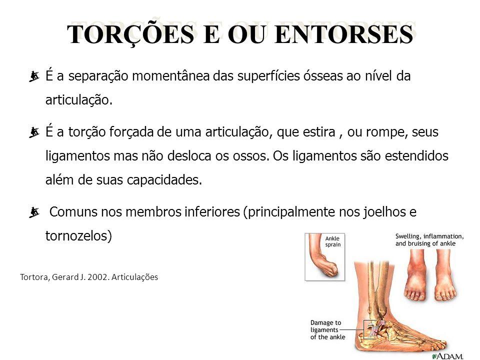 TORÇÕES E OU ENTORSES  É a separação momentânea das superfícies ósseas ao nível da articulação.  É a torção forçada de uma articulação, que estira,
