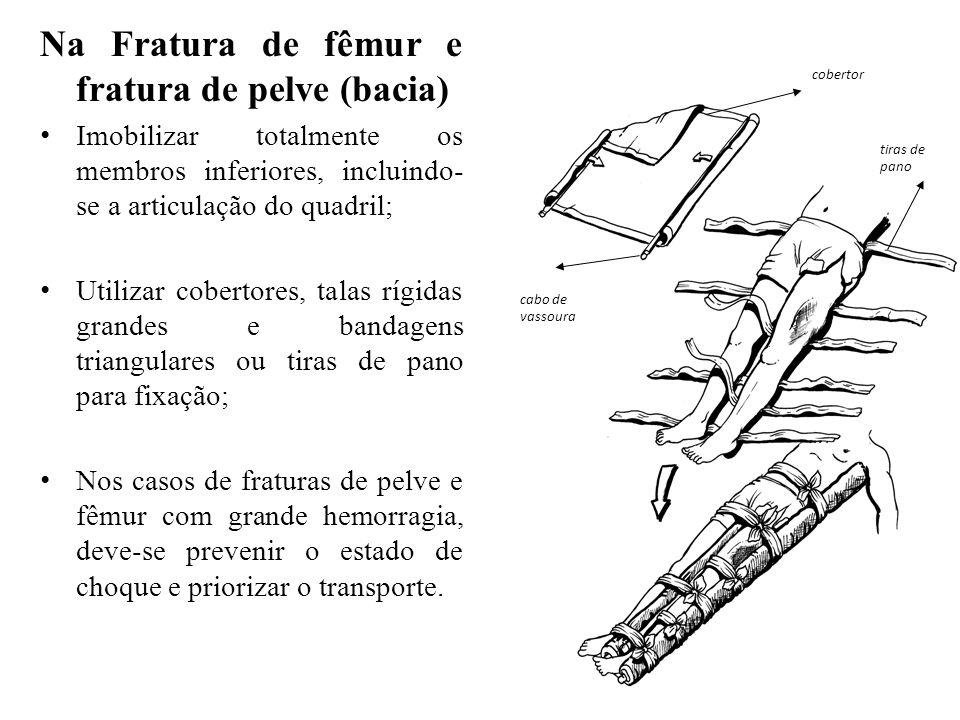 Na Fratura de fêmur e fratura de pelve (bacia) Imobilizar totalmente os membros inferiores, incluindo- se a articulação do quadril; Utilizar cobertore