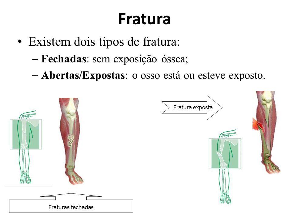Fratura Existem dois tipos de fratura: – Fechadas: sem exposição óssea; – Abertas/Expostas: o osso está ou esteve exposto. Fraturas fechadas Fratura e