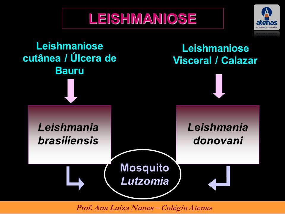LEISHMANIOSE Leishmaniose cutânea / Úlcera de Bauru Leishmaniose Visceral / Calazar Leishmania brasiliensis Leishmania donovani Mosquito Lutzomia Prof