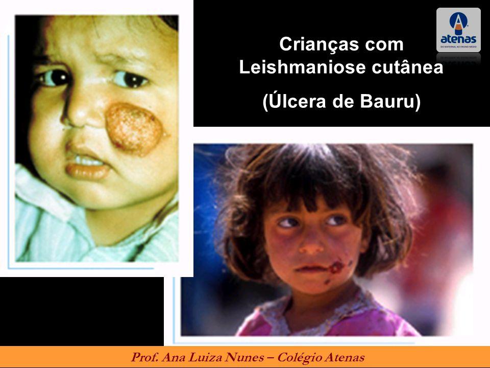 Crianças com Leishmaniose cutânea (Úlcera de Bauru) Prof. Ana Luiza Nunes – Colégio Atenas