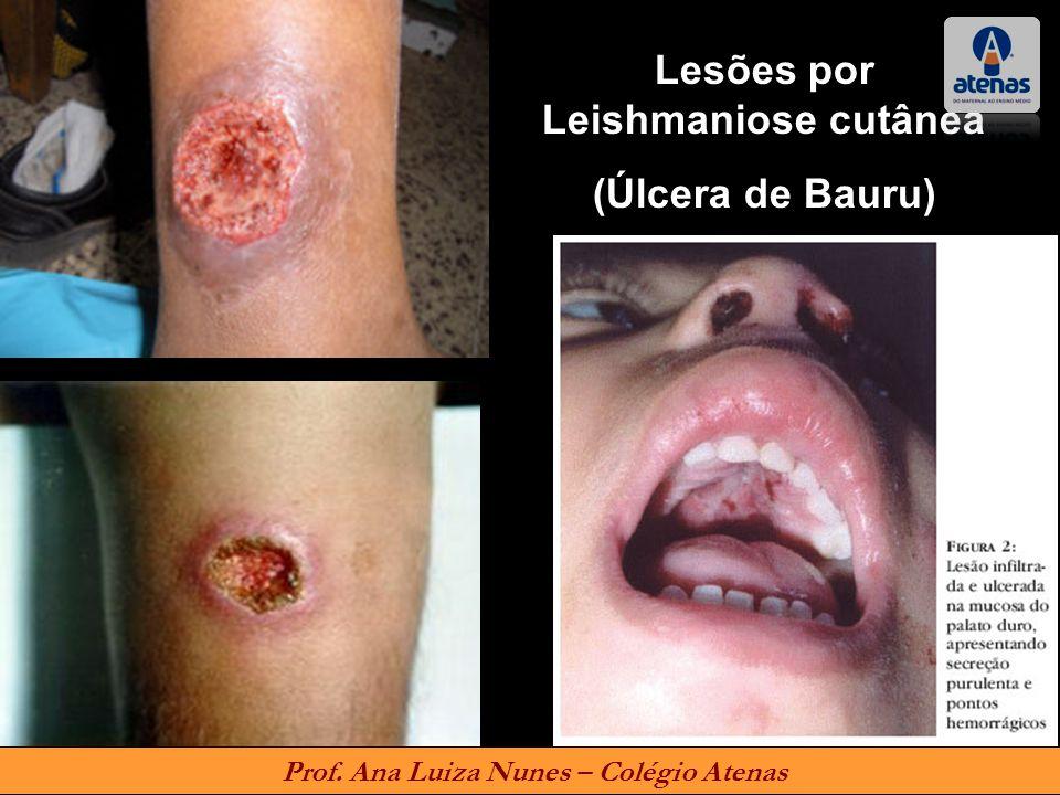 Lesões por Leishmaniose cutânea (Úlcera de Bauru) Prof. Ana Luiza Nunes – Colégio Atenas