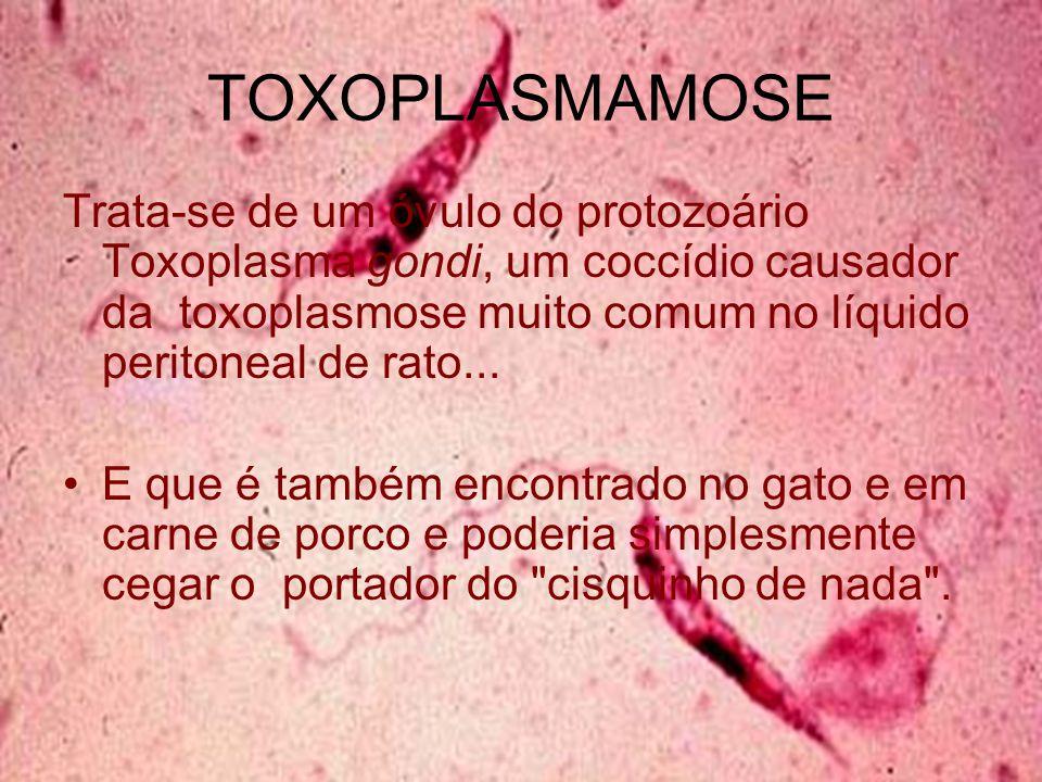 TOXOPLASMAMOSE Trata-se de um óvulo do protozoário Toxoplasma gondi, um coccídio causador da toxoplasmose muito comum no líquido peritoneal de rato...