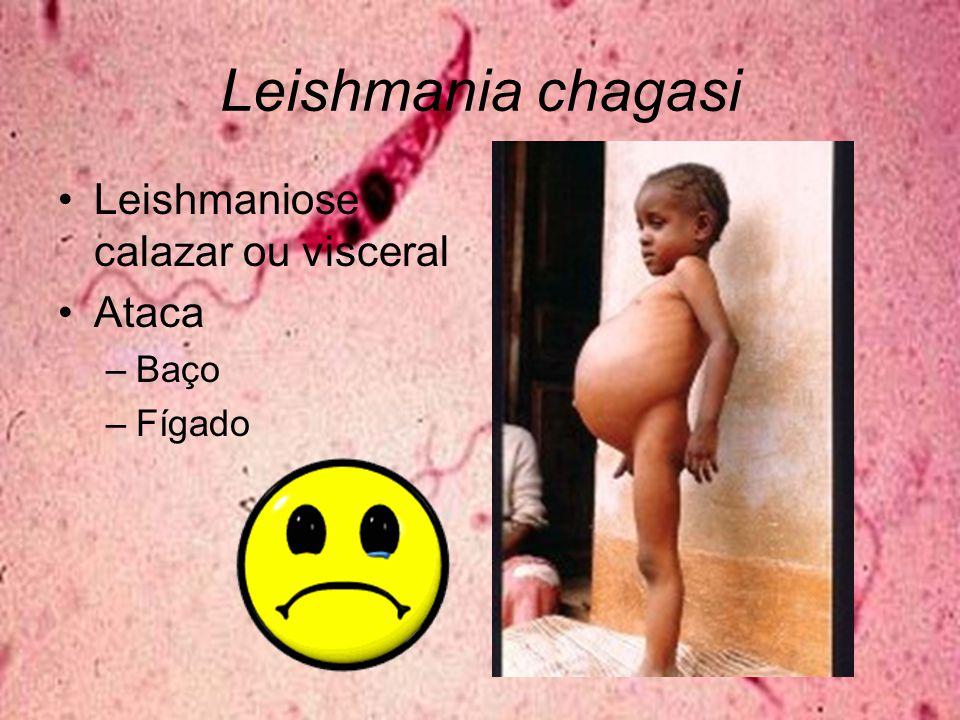Leishmania chagasi Leishmaniose calazar ou visceral Ataca –Baço –Fígado