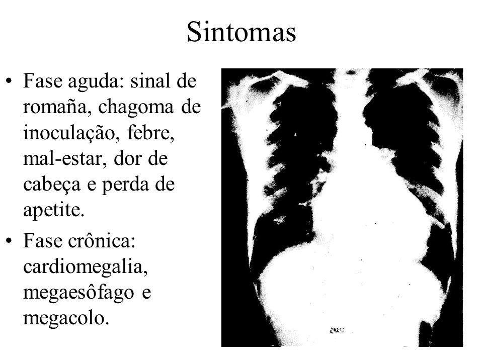 Sintomas Fase aguda: sinal de romaña, chagoma de inoculação, febre, mal-estar, dor de cabeça e perda de apetite.