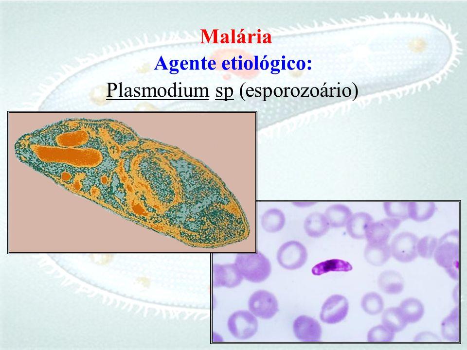Malária Agente etiológico: Plasmodium sp (esporozoário)