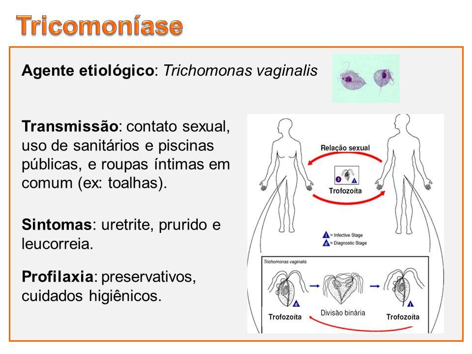 Agente etiológico: Trichomonas vaginalis Sintomas: uretrite, prurido e leucorreia. Profilaxia: preservativos, cuidados higiênicos. Transmissão: contat