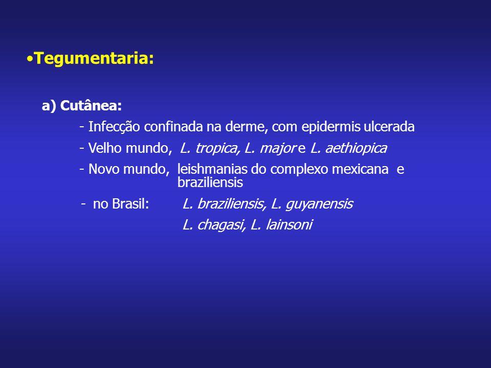 Tegumentaria: a) Cutânea: - Infecção confinada na derme, com epidermis ulcerada - Velho mundo, L. tropica, L. major e L. aethiopica - Novo mundo, leis