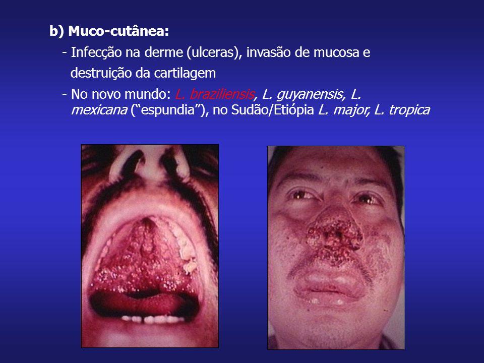 b) Muco-cutânea: - Infecção na derme (ulceras), invasão de mucosa e destruição da cartilagem - No novo mundo: L. braziliensis, L. guyanensis, L. mexic