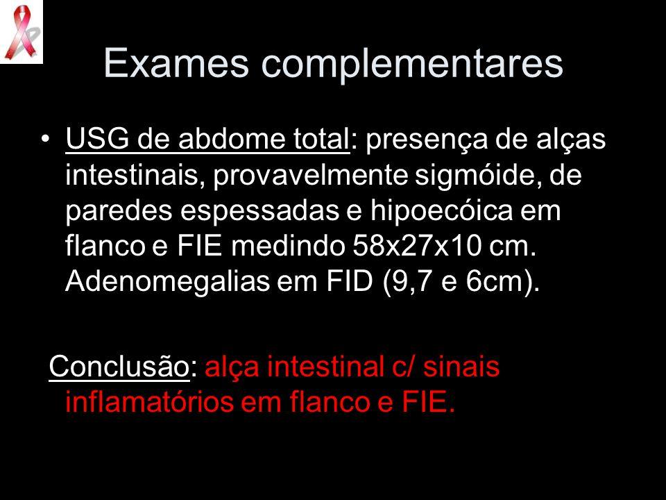 Exames complementares USG de abdome total: presença de alças intestinais, provavelmente sigmóide, de paredes espessadas e hipoecóica em flanco e FIE m