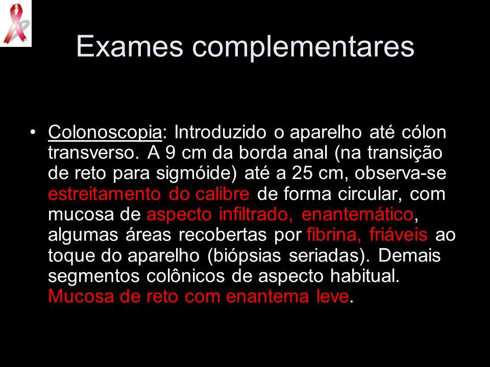 Exames complementares Colonoscopia: Introduzido o aparelho até cólon transverso. A 9 cm da borda anal (na transição de reto para sigmóide) até a 25 cm