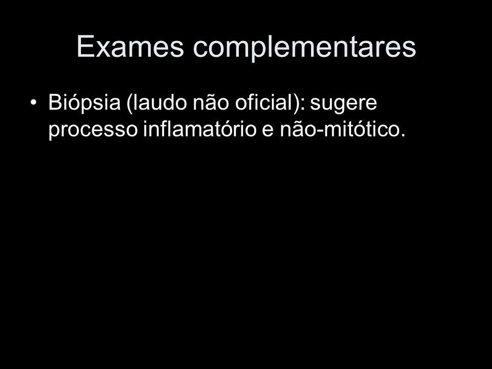 Exames complementares Biópsia (laudo não oficial): sugere processo inflamatório e não-mitótico.