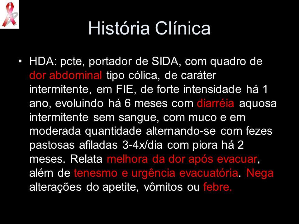 História Clínica HDA: pcte, portador de SIDA, com quadro de dor abdominal tipo cólica, de caráter intermitente, em FIE, de forte intensidade há 1 ano,