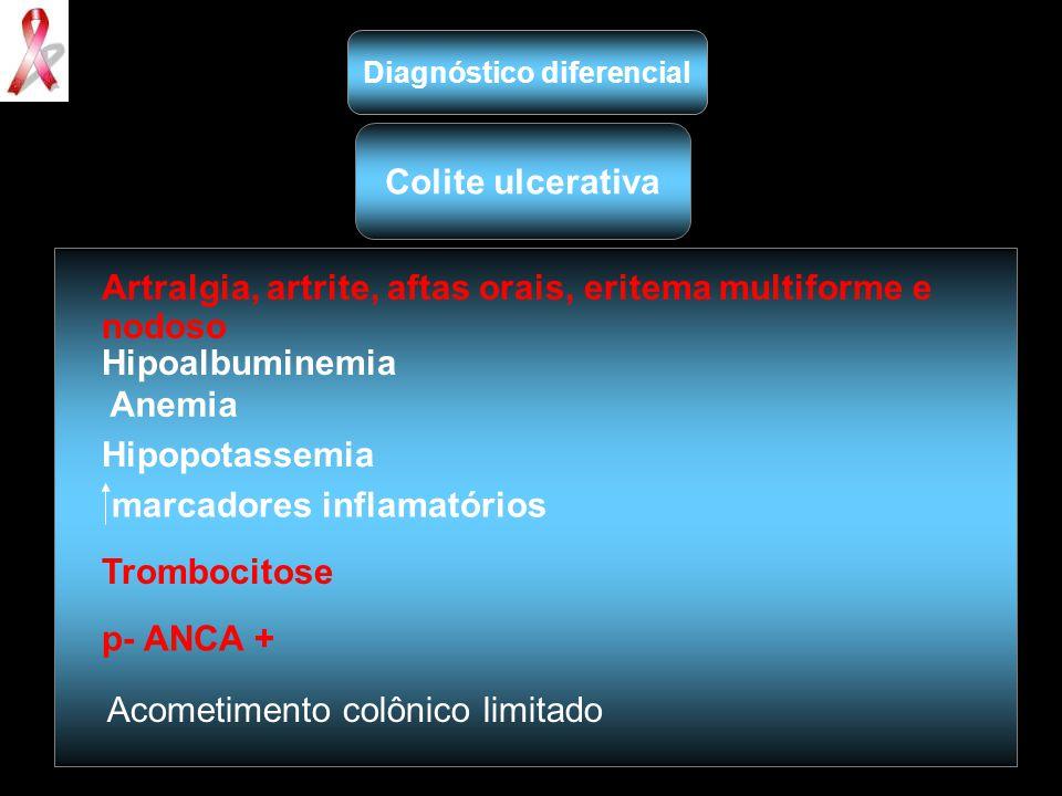 Artralgia, artrite, aftas orais, eritema multiforme e nodoso Hipoalbuminemia Anemia Hipopotassemia marcadores inflamatórios Trombocitose p- ANCA + Aco