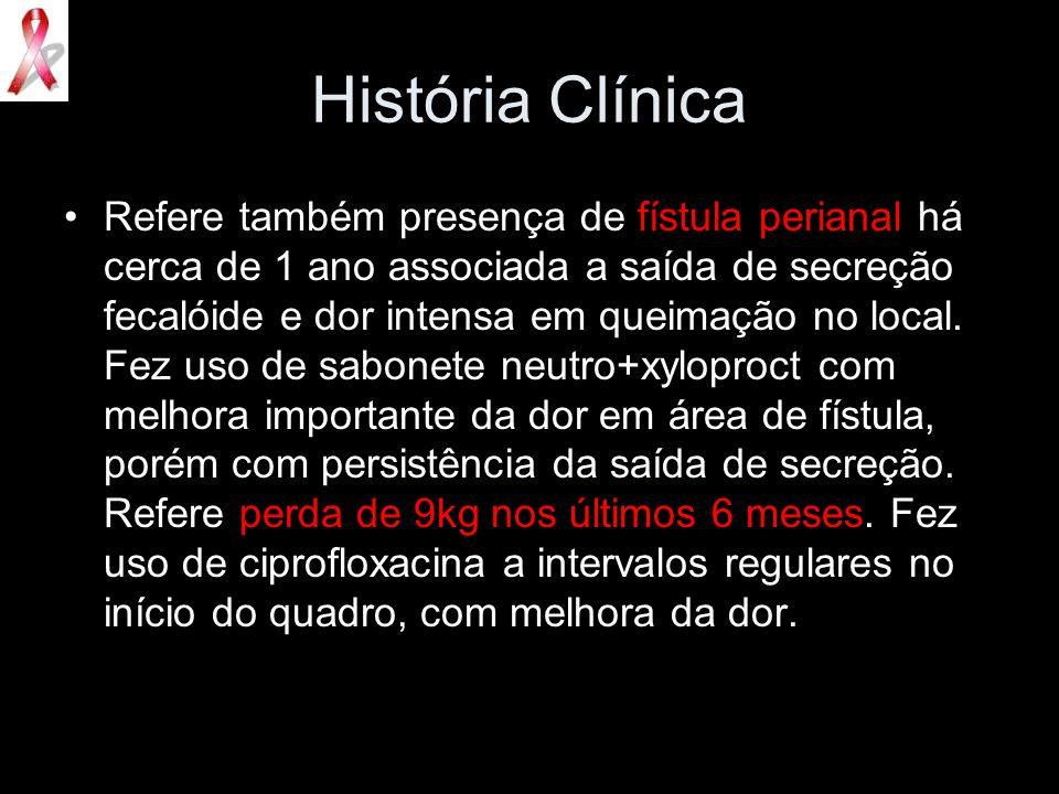 História Clínica Refere também presença de fístula perianal há cerca de 1 ano associada a saída de secreção fecalóide e dor intensa em queimação no lo