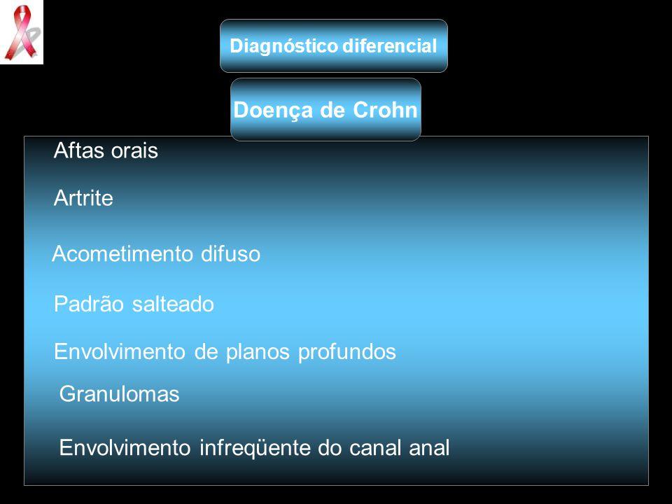 Aftas orais Artrite Acometimento difuso Padrão salteado Envolvimento de planos profundos Granulomas Envolvimento infreqüente do canal anal Diagnóstico