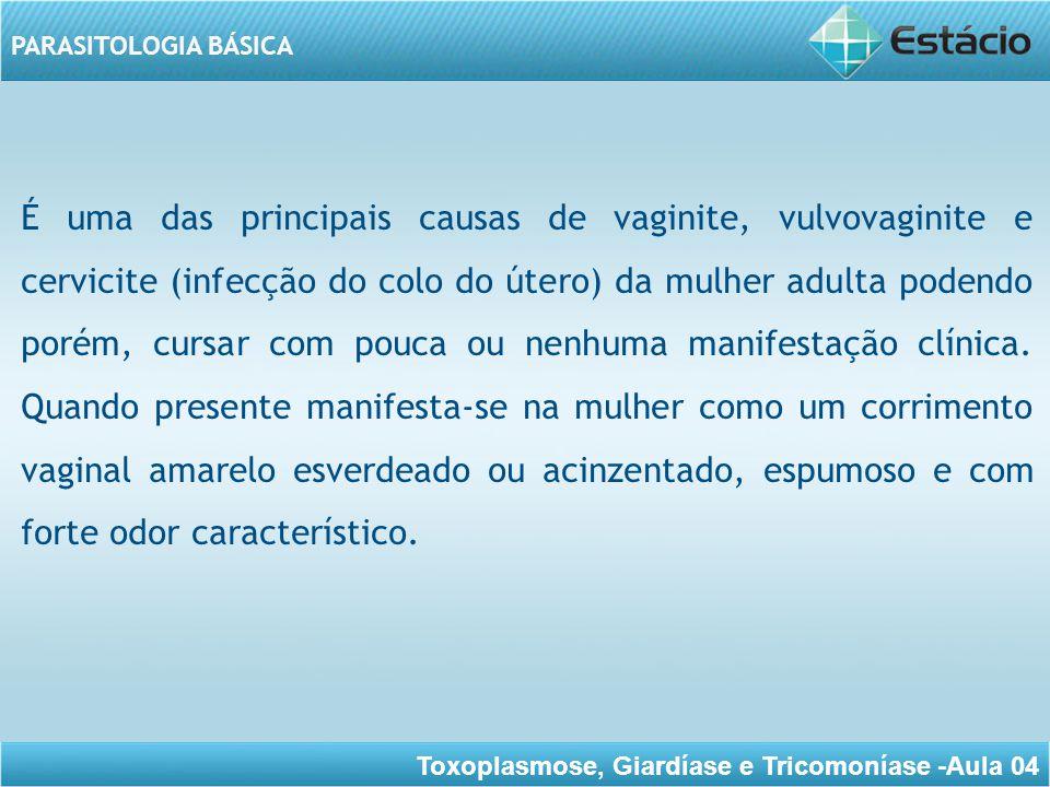 Toxoplasmose, Giardíase e Tricomoníase -Aula 04 PARASITOLOGIA BÁSICA MORFOLOGIA O T.