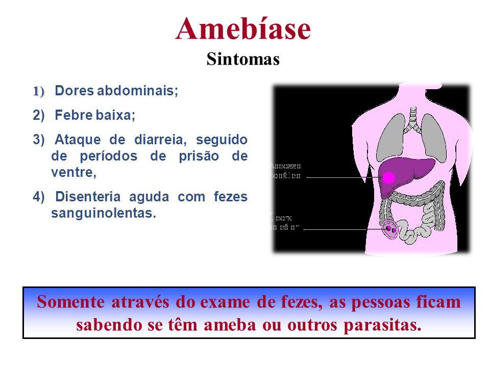 1) 1) Dores abdominais; 2) Febre baixa; 3) Ataque de diarreia, seguido de períodos de prisão de ventre, 4) Disenteria aguda com fezes sanguinolentas.