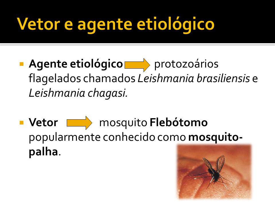  Agente etiológico protozoários flagelados chamados Leishmania brasiliensis e Leishmania chagasi.