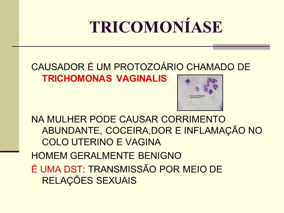 TRICOMONÍASE CAUSADOR É UM PROTOZOÁRIO CHAMADO DE TRICHOMONAS VAGINALIS NA MULHER PODE CAUSAR CORRIMENTO ABUNDANTE, COCEIRA,DOR E INFLAMAÇÃO NO COLO U