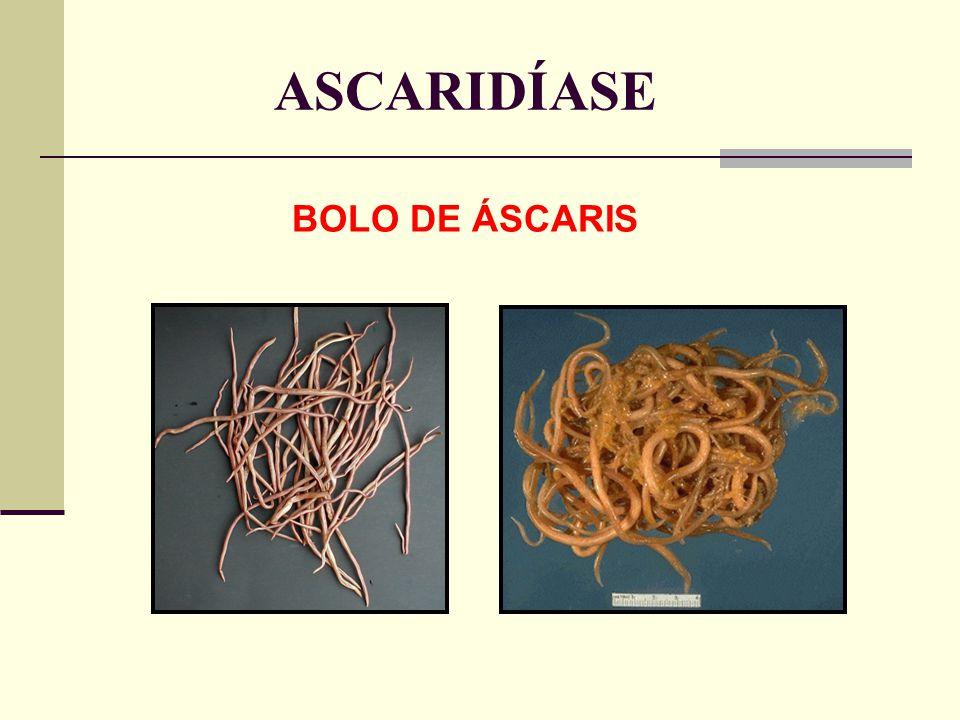 ASCARIDÍASE BOLO DE ÁSCARIS
