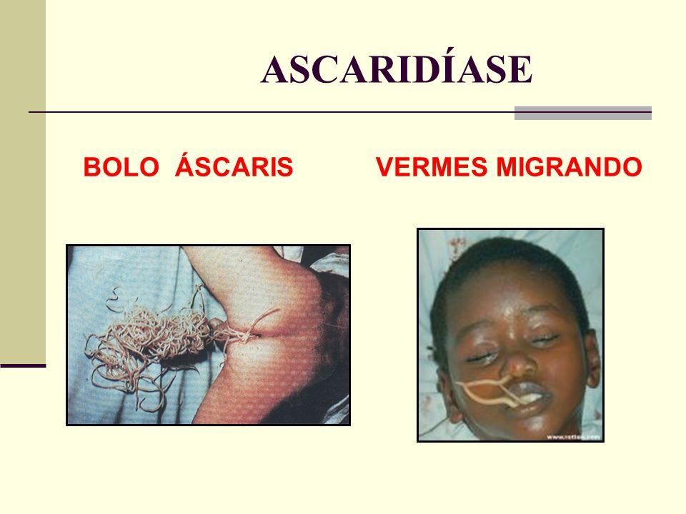 ASCARIDÍASE BOLO ÁSCARIS VERMES MIGRANDO