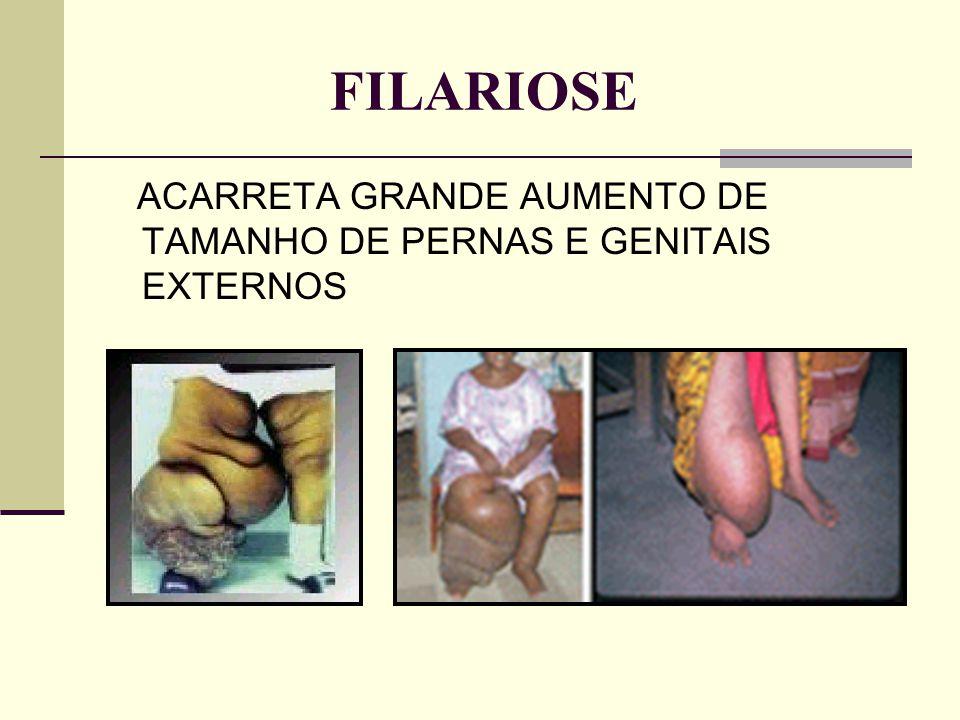 FILARIOSE ACARRETA GRANDE AUMENTO DE TAMANHO DE PERNAS E GENITAIS EXTERNOS