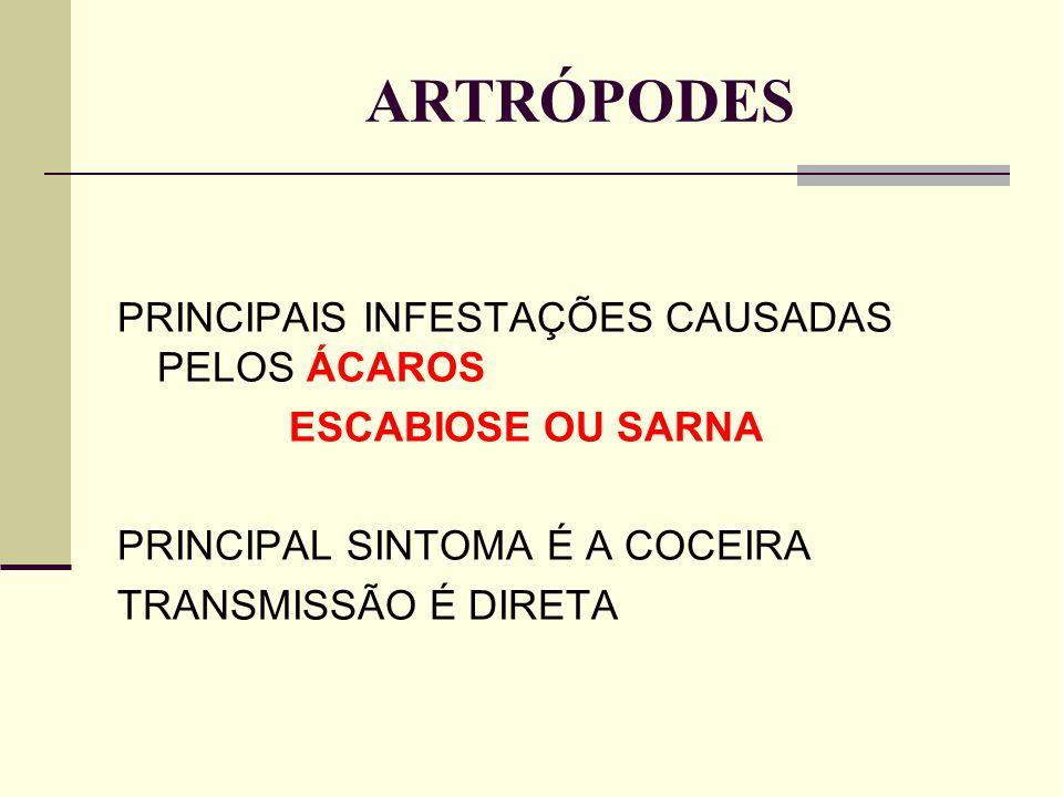 ARTRÓPODES PRINCIPAIS INFESTAÇÕES CAUSADAS PELOS ÁCAROS ESCABIOSE OU SARNA PRINCIPAL SINTOMA É A COCEIRA TRANSMISSÃO É DIRETA