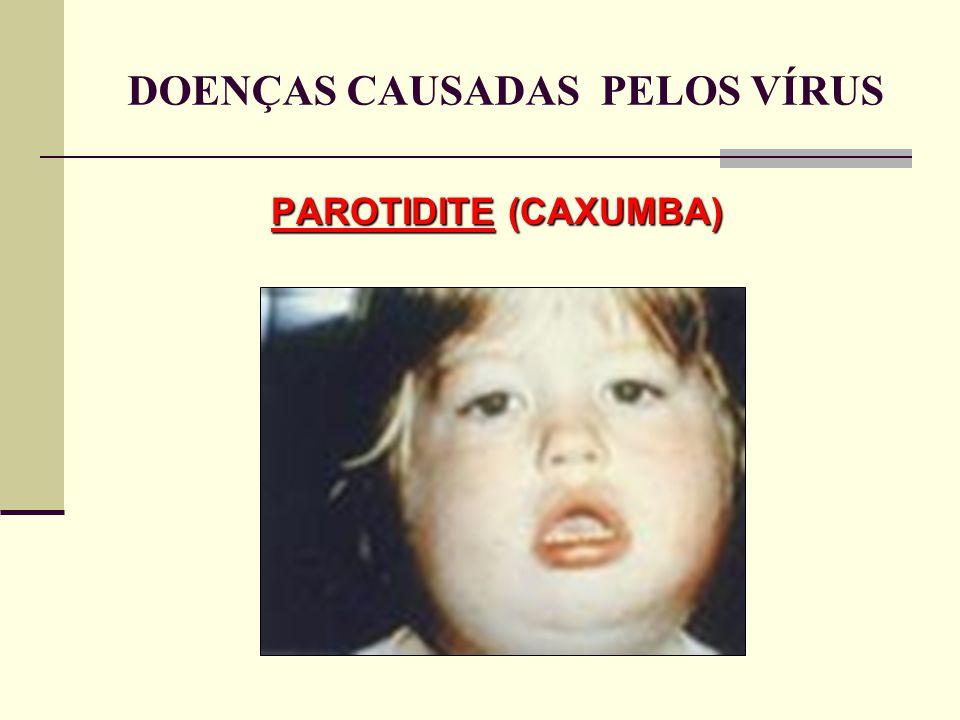 PAROTIDITE (CAXUMBA) DOENÇAS CAUSADAS PELOS VÍRUS