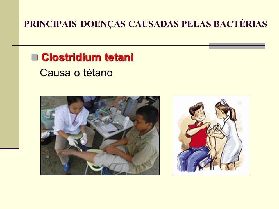 Clostridium tetani Clostridium tetani Causa o tétano PRINCIPAIS DOENÇAS CAUSADAS PELAS BACTÉRIAS