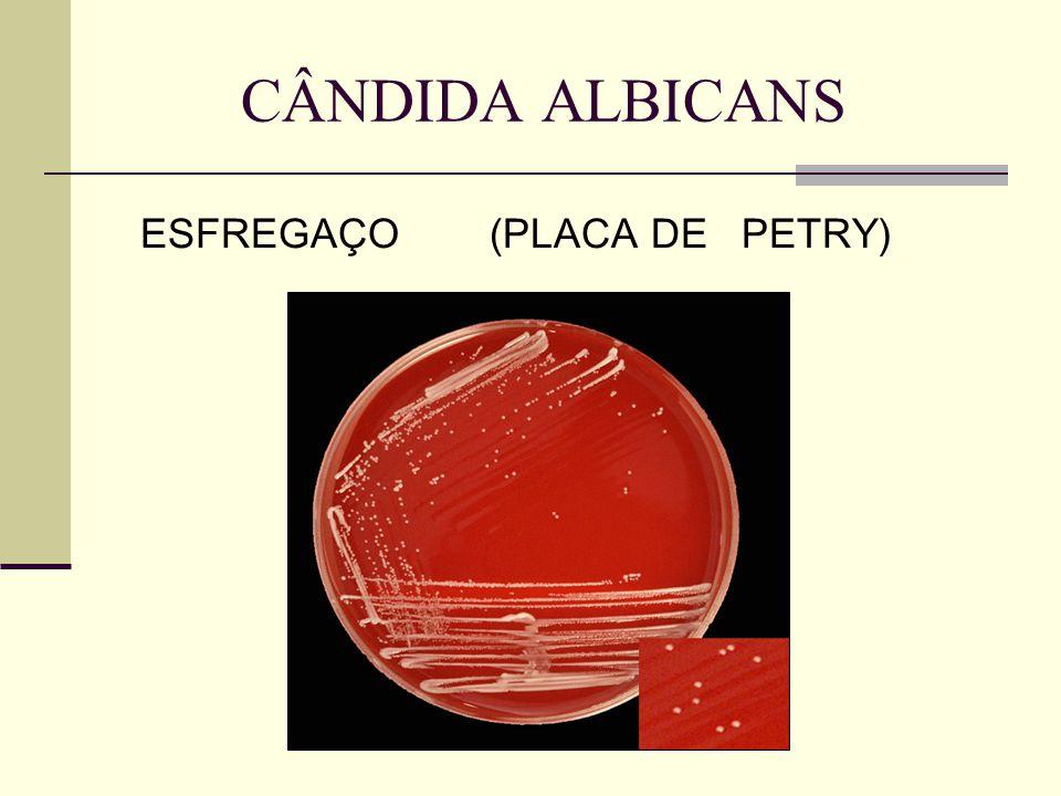 CÂNDIDA ALBICANS ESFREGAÇO (PLACA DE PETRY)