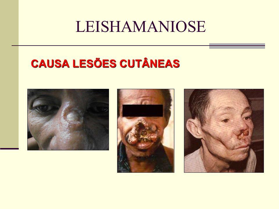 CAUSA LESÕES CUTÂNEAS LEISHAMANIOSE