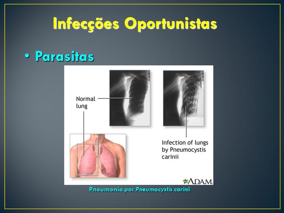 Infecções Oportunistas ParasitasParasitas Pneumonia por Pneumocystis carinii