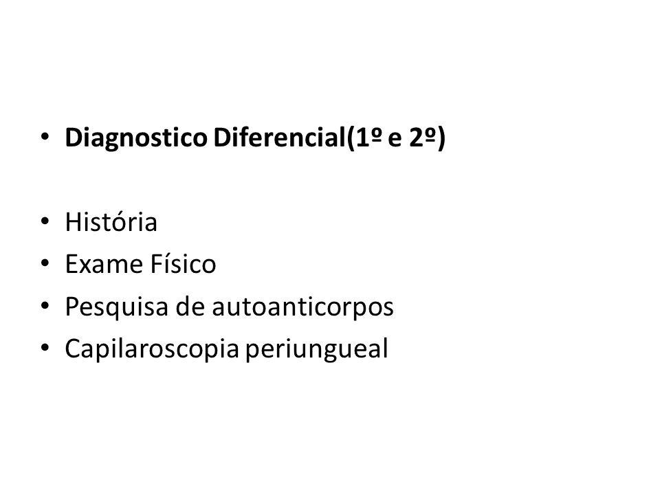Diagnostico Diferencial(1º e 2º) História Exame Físico Pesquisa de autoanticorpos Capilaroscopia periungueal