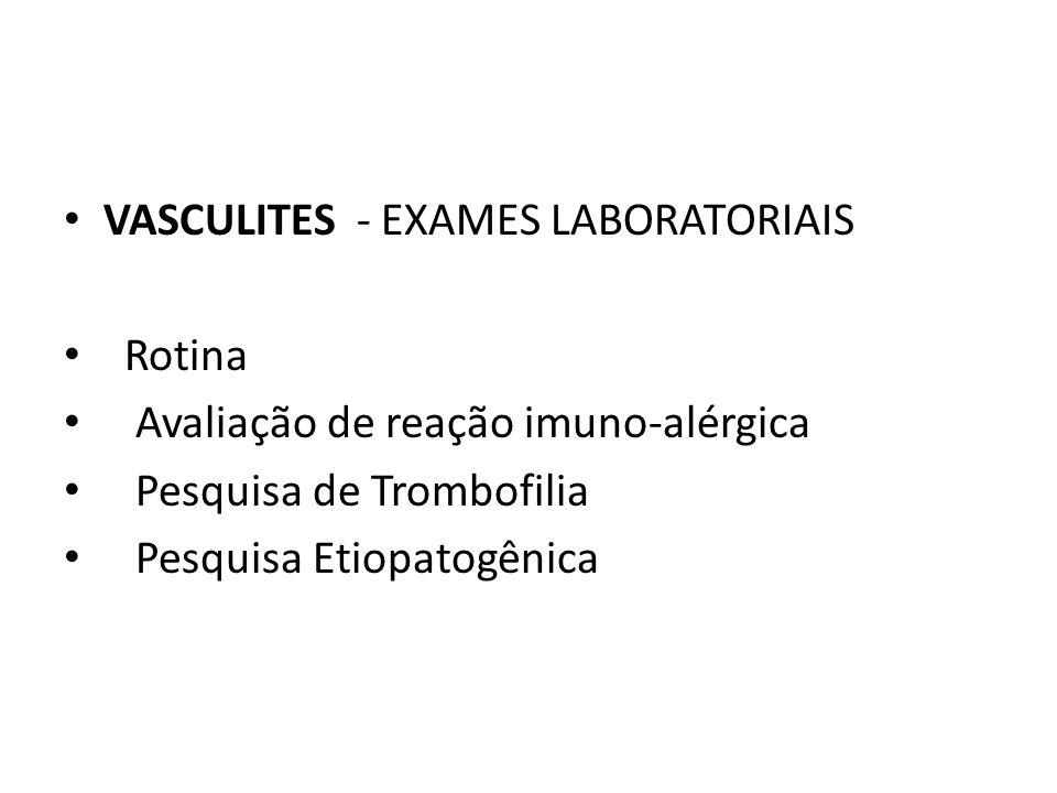 VASCULITES - EXAMES LABORATORIAIS Rotina Avaliação de reação imuno-alérgica Pesquisa de Trombofilia Pesquisa Etiopatogênica