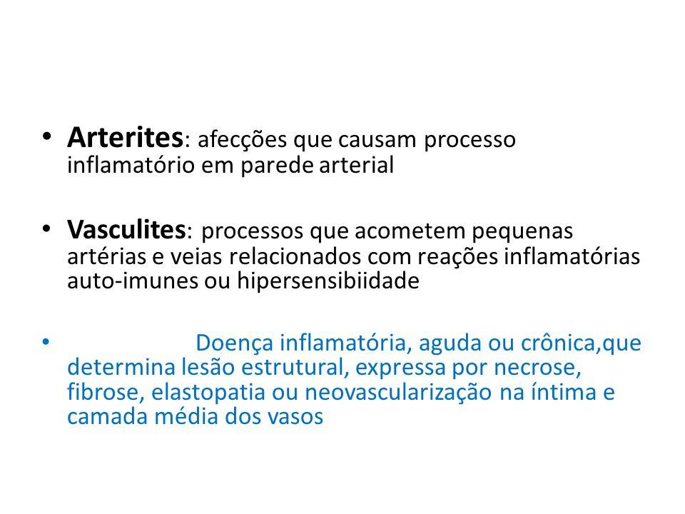 Arterites : afecções que causam processo inflamatório em parede arterial Vasculites : processos que acometem pequenas artérias e veias relacionados co