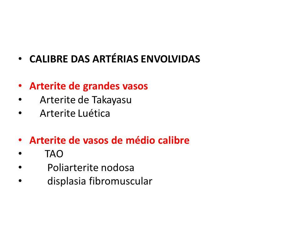CALIBRE DAS ARTÉRIAS ENVOLVIDAS Arterite de grandes vasos Arterite de Takayasu Arterite Luética Arterite de vasos de médio calibre TAO Poliarterite no