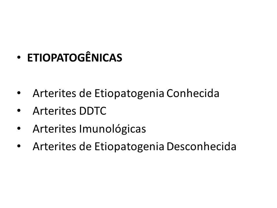 ETIOPATOGÊNICAS Arterites de Etiopatogenia Conhecida Arterites DDTC Arterites Imunológicas Arterites de Etiopatogenia Desconhecida