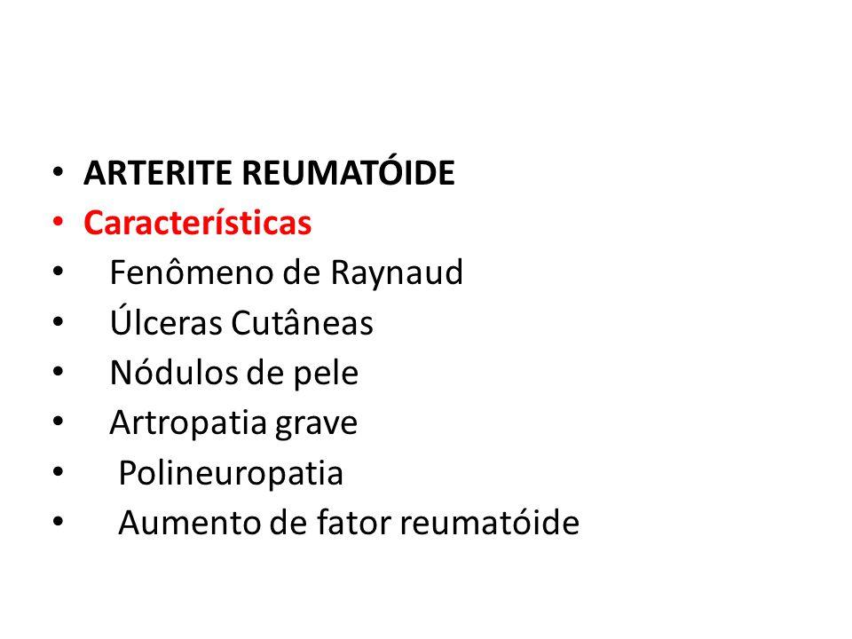 ARTERITE REUMATÓIDE Características Fenômeno de Raynaud Úlceras Cutâneas Nódulos de pele Artropatia grave Polineuropatia Aumento de fator reumatóide