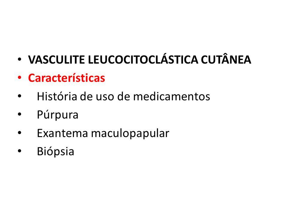 VASCULITE LEUCOCITOCLÁSTICA CUTÂNEA Características História de uso de medicamentos Púrpura Exantema maculopapular Biópsia