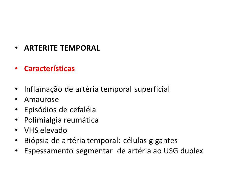 ARTERITE TEMPORAL Características Inflamação de artéria temporal superficial Amaurose Episódios de cefaléia Polimialgia reumática VHS elevado Biópsia