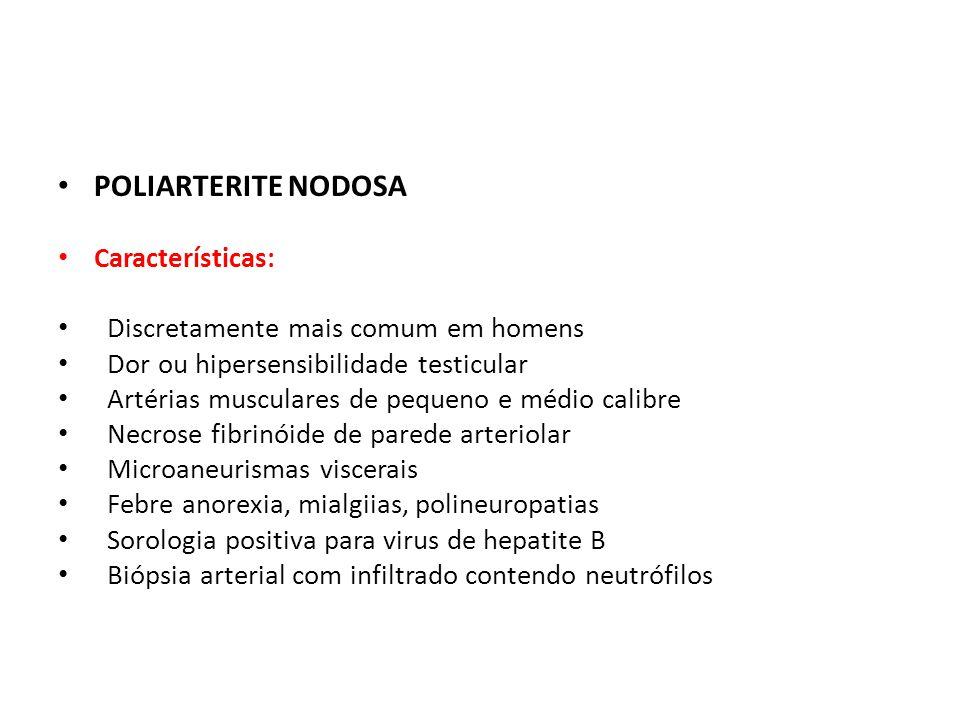 POLIARTERITE NODOSA Características: Discretamente mais comum em homens Dor ou hipersensibilidade testicular Artérias musculares de pequeno e médio ca
