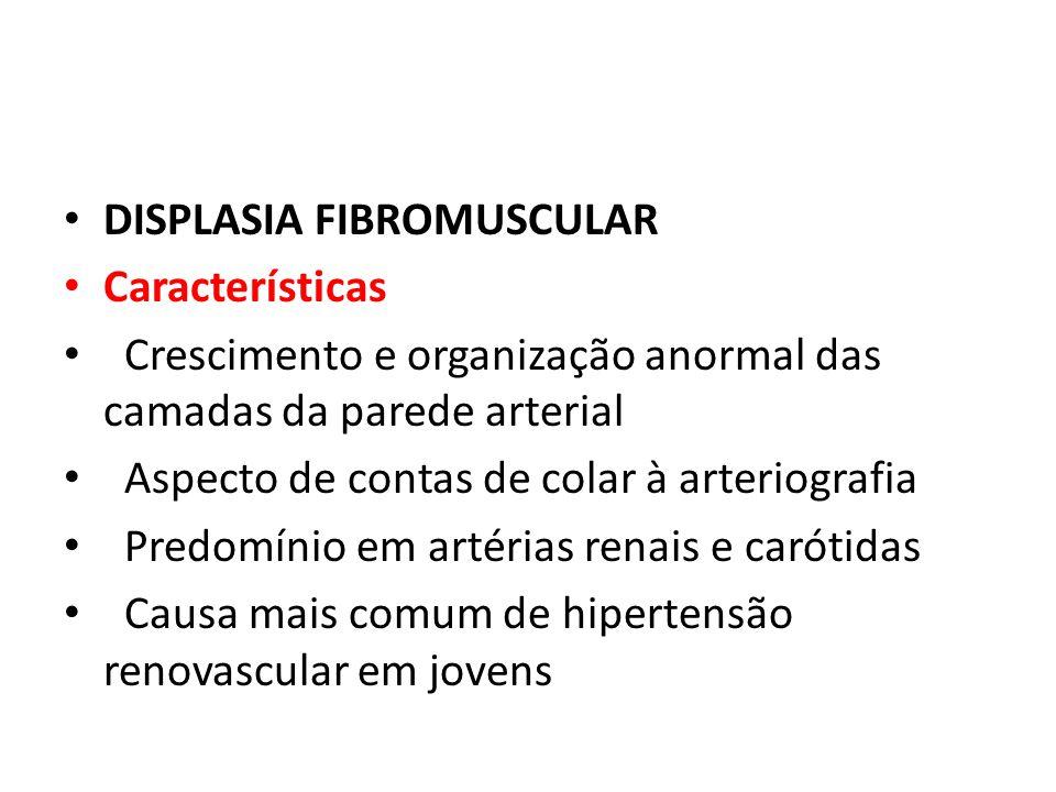 DISPLASIA FIBROMUSCULAR Características Crescimento e organização anormal das camadas da parede arterial Aspecto de contas de colar à arteriografia Pr