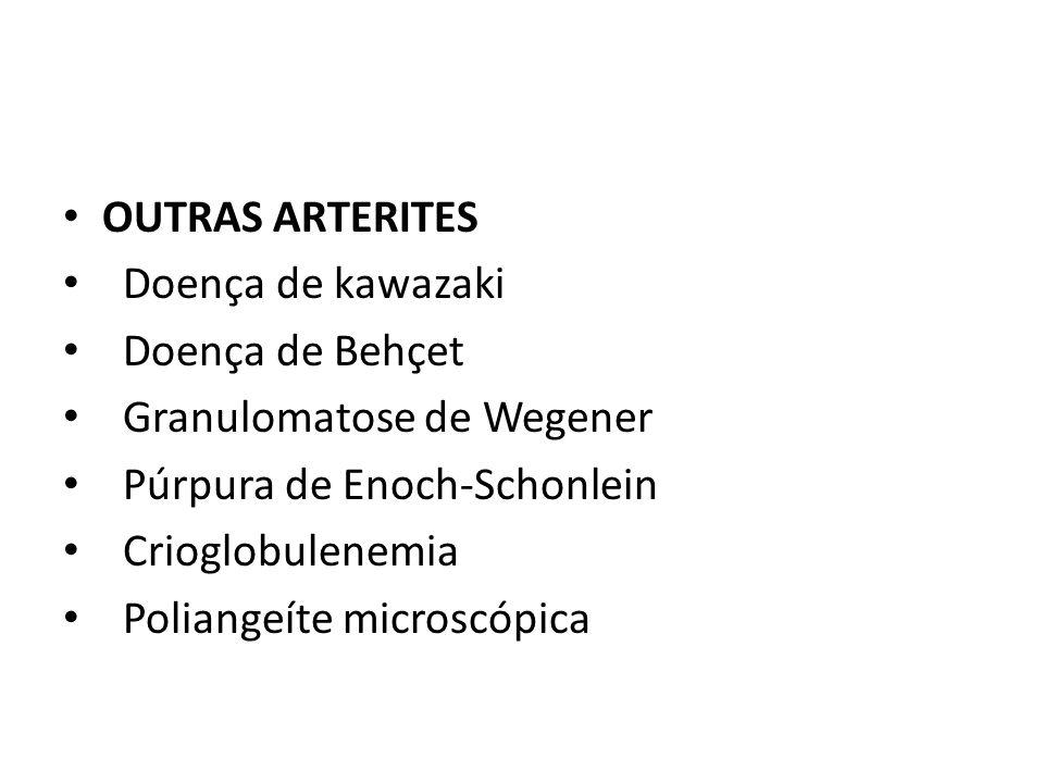 OUTRAS ARTERITES Doença de kawazaki Doença de Behçet Granulomatose de Wegener Púrpura de Enoch-Schonlein Crioglobulenemia Poliangeíte microscópica