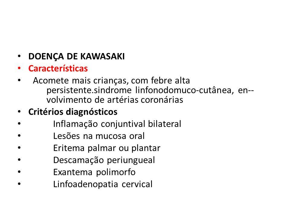 DOENÇA DE KAWASAKI Características Acomete mais crianças, com febre alta persistente.sindrome linfonodomuco-cutânea, en-- volvimento de artérias coron